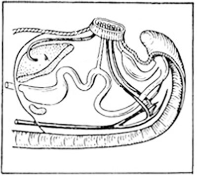 Обработка пупка новорождённого
